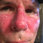 My Face Treatment